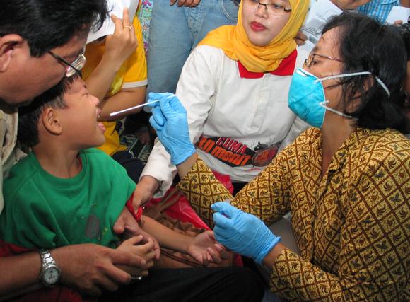 בדיקה לילד באינדונזיה במהלך התפרצות שפעת העופות